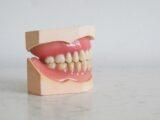 hvide tænder tandlæge