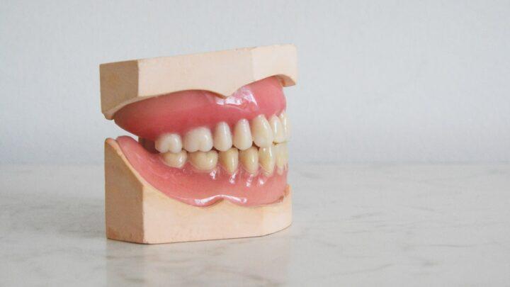 Hvide tænder: Er det sundt at afblege sine tænder?